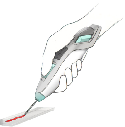 biopsy01